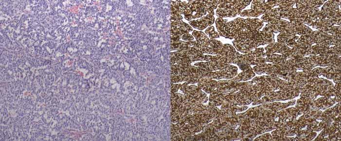 Histologický obraz gatrinomu kaudy pankreatu (WHO 2010 grade 2), vpravo imunohistochemické barvení.<br> Fig. 4. Histological picture of gastrinoma of pancreatic tail (WHO 2010 grade 2), imunohistochemical staining on the right.