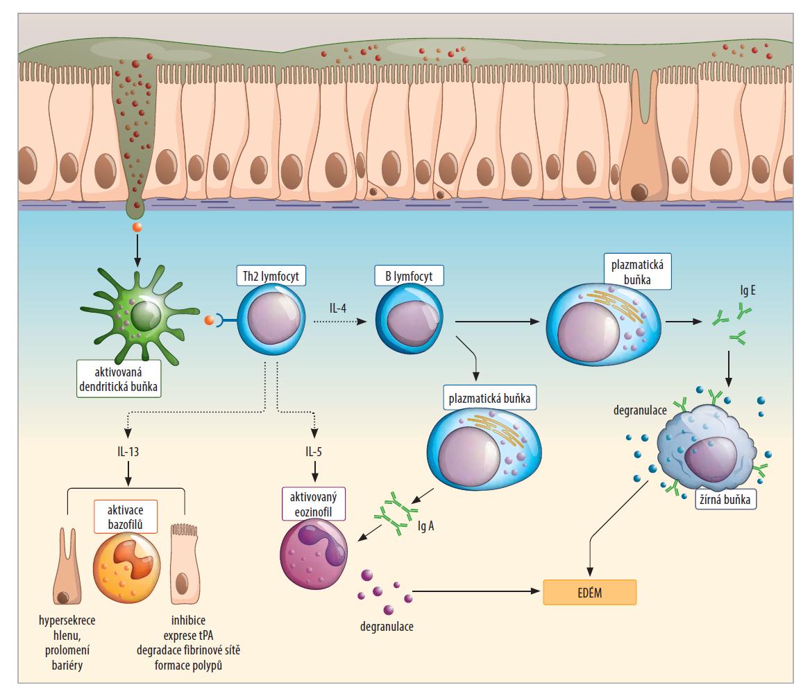 Schéma 1. Schéma průběhu imunopatologické odpovědi II. typu.<br> Scheme 1. Scheme of the course of the immunopathological response II. type.