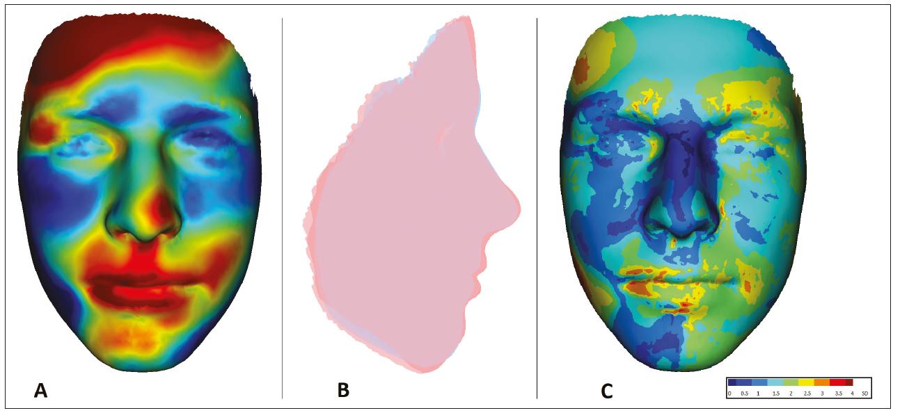 Znázornění oblastí deformace obličeje u 15letého pacienta s OAVS z obr. 3 v porovnání s fyziologickou normou zdravé populace odpovídajícího věku a pohlaví<br> A. porovnání tvaru obličeje: červeně – oblasti protruze vůči normě; modře – oblasti retruze vůči normě;<br> B. porovnání profi lu obličeje: červeně – pacient A; modře – norma;<br> C. vizualizace odchylek tvaru obličeje od normy pomocí SD skóre (obrazová dokumentace oddělení ortodoncie a rozštěpových vad, Stomatologická klinika FNKV, Praha)<br> Fig. 4 Visualization of areas of facial deformation in a 15-year-old OAVS patient of Fig 3 compared to the physiological norm of a healthy population of corresponding age and sex<br> A. face shape comparison: red – protrusion area to normal; blue – areas of retrusion to norm;<br> B. face profi le comparison: red – patient; blue – norm;<br> C. visualization of deviations of face shape from norm using SD score (Department of Orthodontics and Cleft Anomalies, 3rd Faculty of Medicine, Charles University and Kralovske Vinohrady University Hospital)