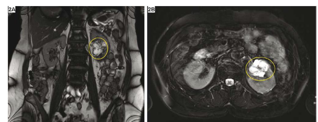 MR zobrazení cystické léze – Bosniak III; vícečetná septa, s centrálním zesílením, po aplikaci kontrastní látky s mírným sycením; A – T2 vážený koronární řez, B – T2 vážený axiální řez<br> Fig. 2. MR imaging of cystic renal lesion – Bosniak III; multicystic lesion with thickening of the septas in the centre, and mild accumulation of contrast agent; A – coronal section, B – axial section