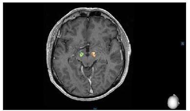 Postoperative control of deep brain stimulation in the subthalamic nucleus using the SureTune® software (Medtronic, Dublin, Ireland).<br> Obr. 2. Pooperační kontrola uložení elektrod hluboké mozkové stimulace v subtalamickém jádru pomocí systému SureTune® (Medtronic, Dublin, Irsko).