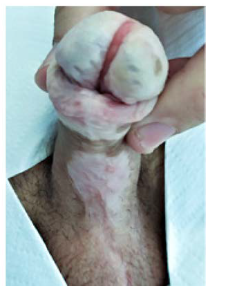 Vzhled dva roky po operaci<br> Fig. 8. Final appearance two years after surgery