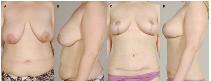 Obr. 3a 31letá pacientka po redukci váhy o 16 kg, před abdominoplastikou s liposukcí boků a modelací prsů (estetická indikace)<br> Obr. 3b Pacientka před operací<br> Obr. 3c Pacientka 2 roky po operaci<br> Obr. 3d Pacientka 2 roky po operaci