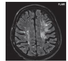 Pacient č. 12: v oblasti bílé hmoty frontálně l. sin je patrné nepravidelné, neostře ohraničené ložisko vůči okolní bílé hmotě (šipka), dále jsou patrná splývavá ložiska v bílé hmotě, která jsou více ohraničená vůči bílé hmotě, nález u progresivní multifokální leukoencefalopatie je zde jen částečně odlišný, od okolních splývavých ložisek u RS, dominantní pro diagnostiku progresivní multifokální leukoencefalopatie, zde bylo porovnání s předchozí kontrolou.<br> Fig. 7. Patient No. 12: in the left frontal lobe white matter, there is an irregular hyperintensity lesions (arrow) and also confluent MS lesion, which are more limited to white matter; the findings in progressive multifocal leukoencephalopathy are only partially different from the accompanying MS lesions, so comparison with a previous control was crucial for progressive multifocal leukoencephalopathy diagnosis.