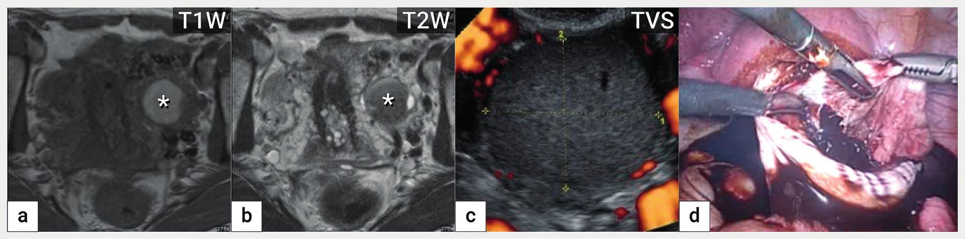 Endometroidní cysta<br> Zobrazení endometroidní cysty v magnetické rezonanci na podkladě přítomnosti rozpadových produktů hemoglobinu, která je v T1 váženém obrazu hyperintenzní (zvýšený signál) (a) a v T2 váženém obraze hypointenzní (tzv. shading) (b), v ultrazvukovém zobrazení patrná avaskulární unilokulární cysta s denzní hypoechogenní intracystickou tekutinou (c) a intraoperační nález z laparoskopické cystektomie (d). T1W a T2W – T1 a T2 vážené obrazy v magnetické rezonanci, TVS – transvaginální sonografie