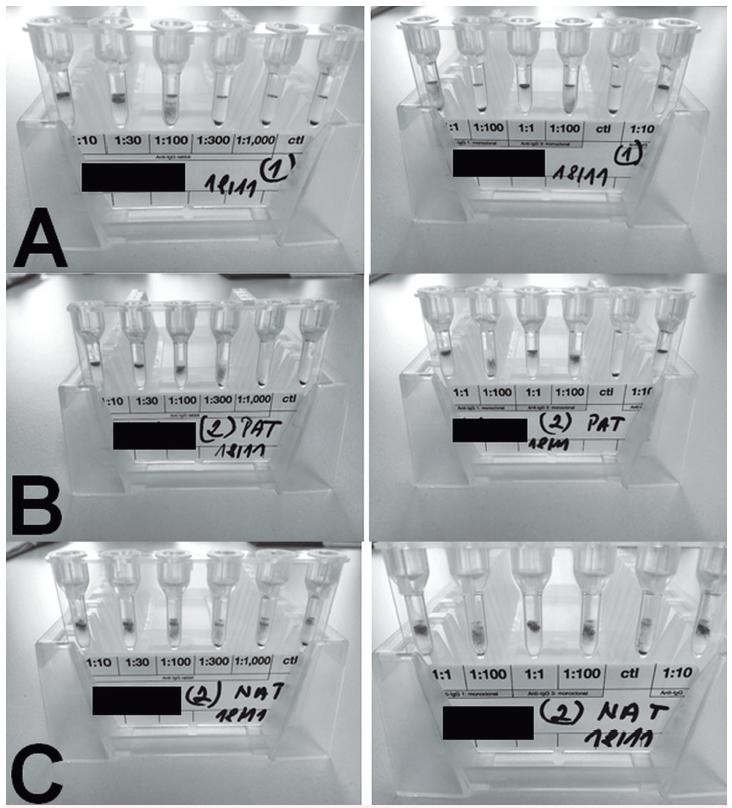 PAT/NAT u pacienta 1<br> A – PAT, retikulocyty, periferní krev<br> B – PAT, erytrocyty periferní krev<br> C – NAT, plazma