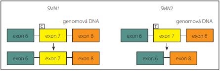 Rozdílný sestřih SMN1 a SMN2 [29].<br> Fig. 2. Different splicing of SMN1 and SMN2 [29].