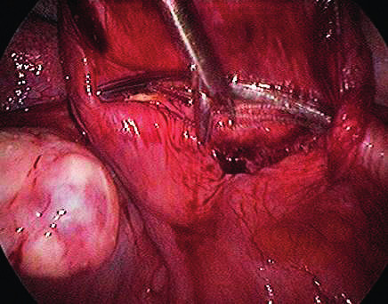 Extraction of the implant from Serapro RTD on vaginal stump