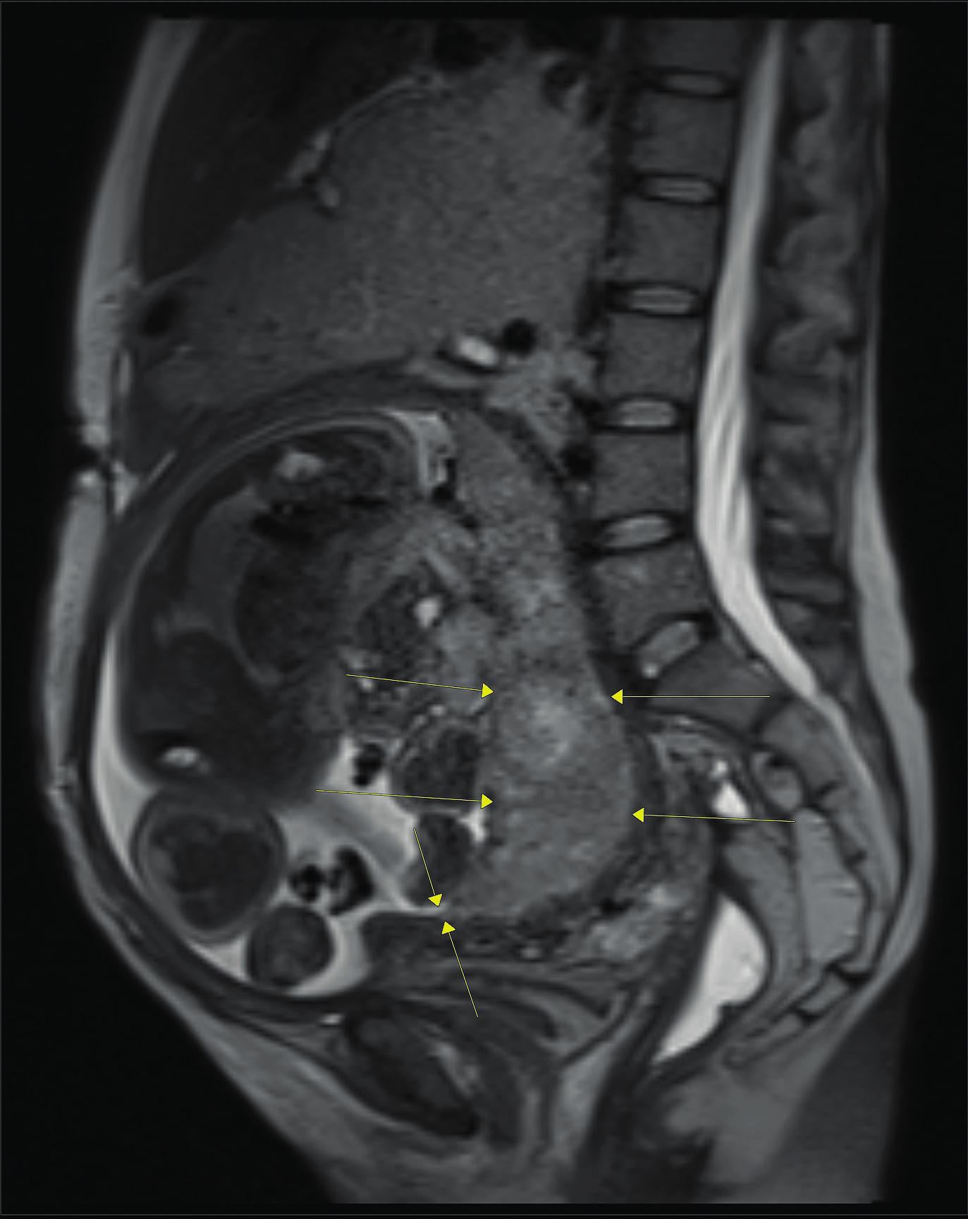 MRI dutiny břišní: placenta marginalis dosahující ze zadní stěny k vnitřní brance [6]