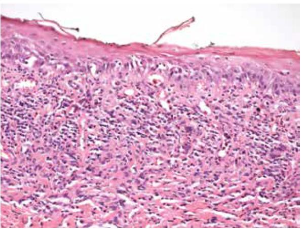 Histologický vzorek z ložiska v dutině ústní u pacientky, odběr v roce 2011. Dlaždicobuněčný epitel sliznice dutiny ústní s vrstvou parakeratózy, vakuolární degenerací, v subepitelovém pojivu pásovitý lymfocytární infiltrát typický pro lichen planus
