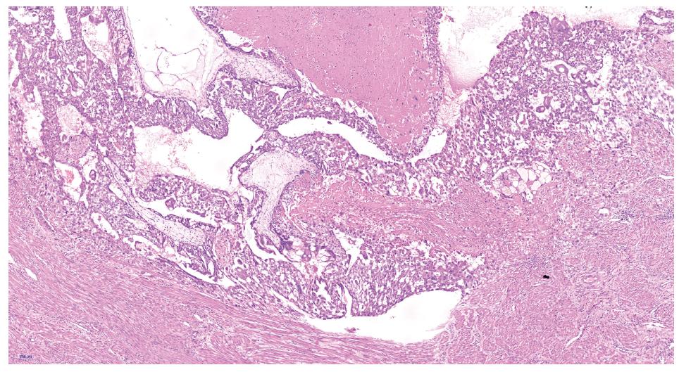 Invaze choriových klků do myometria – hematoxylin eozin