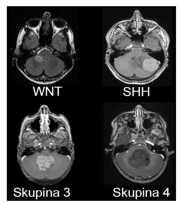 Zobrazení MRI charakteristik jednotlivých podskupin meduloblastomu. A – Wnt-aktivovaný meduloblastom s extenzí do mostomozečkového koutu vpravo a do mozečkového pedunklu. B – SHH – aktivovaný meduloblastom lokalizovaný v levé mozečkové hemisféře. Takové laterální uložení je charakteristické pro SHH meduloblastom. C – Skupina 3 – tumor uložený ve vermis a 4. mozkové komoře s výrazným homogenním sycením po podání kontrastní látky. D – Skupina 4 – uložený ve vermis a 4. mozkové komoře s absencí sycení po podání kontrastní látky, což je charakteristika typická pro meduloblastom Skupiny 4.