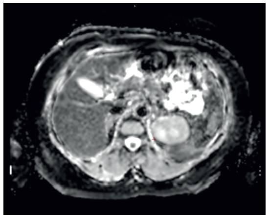 Vyšetření magnetickou rezonancí. V 5. segmentu