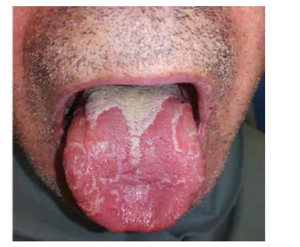 Pacient s lingua geografica vo fáze, kde prevládajú atrofované papily. Predĺžené papily sa nachádzajú len v distálnej tretine dorsum linguae, kde by sme mykologickým vyšetrením dokázali aj premnoženú kandidu.