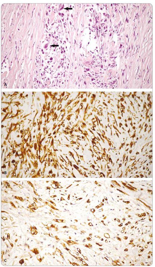Obr. 2. Histologický obraz nediferencovaného karcinómu pankreasu u pacientky. Pozorujeme pleomorfné bunky s atypickými črtami, hyperchrómnymi jadrami (šípka) s prítomnosťou bizarných obrovských buniek s eozinofilnou cytoplazmou, s vretenobunkovými až sarkomatoidnými črtami.<br> Obr. 2A. Farbenie hematoxylínom – eozínom.<br> Obr. 2B. Pozitivita vimentínu v nádorových bunkách imunohistochemicky.<br> Obr. 2C. Pozitivita zmesi cytokeratínov AE1/AE3 v nádorových bunkách imunohistochemicky, 200×.