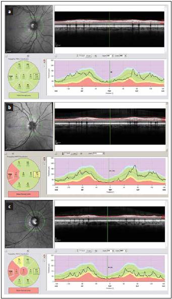 Tloušťka vrstev RNFL v peripapilární oblasti měřená optickou koherenční tomografií. Hodnoty mezi 5. a 95. percentilem normy jsou kódovány zeleně, mezi 1. a 5. percentilem normy žlutě a pod 1. percentilem normy červeně. (a) zobrazuje normální nález. (b, c) zobrazují nálezy u pacientů s RS, u nichž proběhla optická neuritida – k poklesu tloušťky RNFL došlo hlavně v temporálním kvadrantu (červeně a žlutě).<br> Fig. 1. Peripapillary thickness of RNFL as measured by optical coherence tomography. Results of RNFL thickness are color coded with values between 5th and 95th percentile of normal coded in green, values between 1st and 5th percentile yellow and values below 1st percentile red. (a) depicts normal fi nding. (b, c) show a loss of RNFL post optic neuritis in multiple sclerosis with a decrease in RNFL in temporal quadrant (yellow and red).