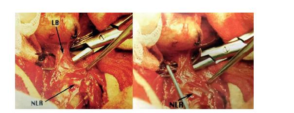 Přerušení LB<br> Fig. 7: The cutting of LB