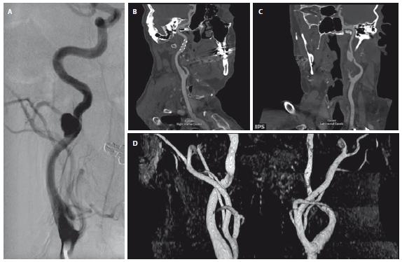 (A) Angiogram s PSA ACI vpravo; (B) průchodný stent a remodelace ACI vpravo 8 let po zavedení stentu na multiplanární rekonstrukci z CTA (říjen 2017); (C) na CTA z října 2017 rovněž zjištěno PSA na ACI vlevo (multiplanární rekonstrukce); (D) MRA zobrazuje průchodné ACI bilaterálně bez plnění PSA. ACI – arteria carotis interna; PSA – pseudoaneuryzma<br> Fig. 2. (A) Angiogram with PSA on the right ICA; (B) remodelling of the right ICA with patent stent on CTA performed in October 2017 (multiplanar reconstruction); (C) PSA of the left ICA on CTA performed in October 2017; (D) MRA of the carotid arteries without PSA opacifi cation after stent implantation. ICA – internal carotid artery; PSA – pseudoaneurysm