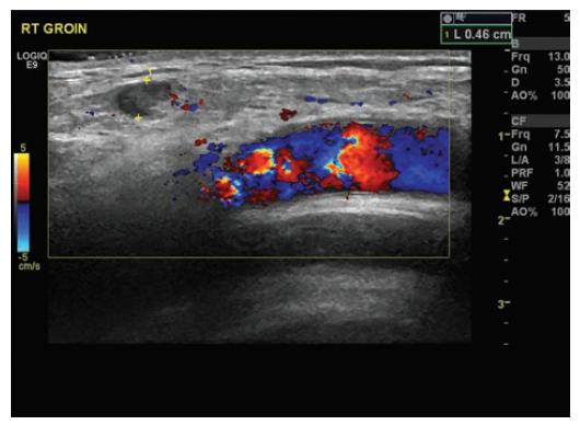 Ultrazvuk pravé kyčle zobrazující cystu a vztah k velkým cévám<br> Fig. 3: US right groin showing cyst and its relation to big vessels