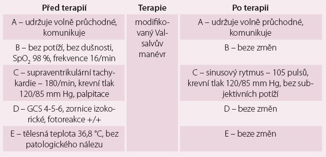 Rozdíly hodnot u pacientky před a po modifikovaném Valsalvově manévru.