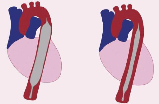 Schéma umiestenia a funkcie intraortálnej balónikovej kontrapulzácie (IABP).