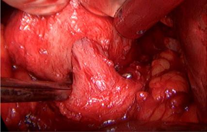 Detail uvolněného hrdla bez použití koagulace<br> Fig. 2. Detail of dissected bladder neck without using coagulation