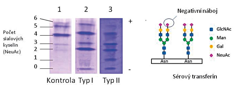 Isoelektrická fokusace transferinu u pacienta s CDG typu I ve srovnání s kontrolou a pacientem s CDG typu II: zvýšené zastoupení nízkosialovaných forem.