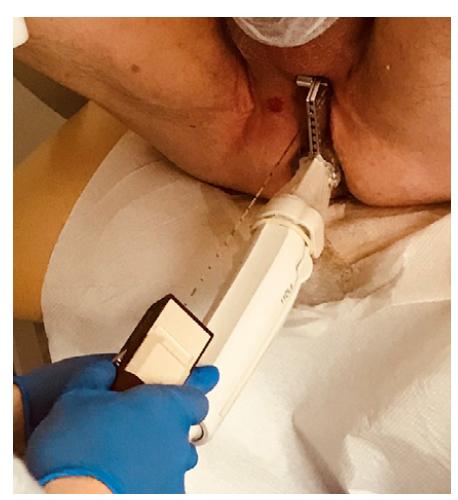 Transperineální biopsie prostaty pomocí freehand techniky s vertikálním navigačním nástavcem (archiv autora)<br> Fig. 5. Transperineal prostate biopsy using the freehand technique and a vertical needle guide (author's archive)