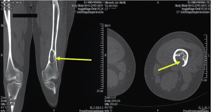 Osteolytické ložisko ve femoru narušující kortikalis<br> Snímek zapůjčil pro tuto publikaci prof. Claus Doberaurer z Gelsenkirchenu, Německo.