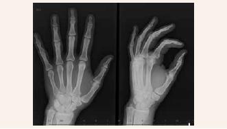 Obr. 2.2 | Cystické projasnění v oblasti hlavičky 2. metakarpu vlevo po 2 letech vymizelo