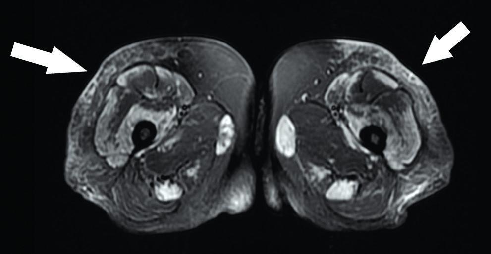 Axiální STIR sekvence – edém skvrnitého charakteru u pacienta s dermatomyozitidou (anti-Mi2+); šipkami označen edém podkoží v lokalizacích kožního poškození. Zdroj: Archiv Revmatologického ústavu (ÚVN Střešovice, Discovery 450; 1,5 T)