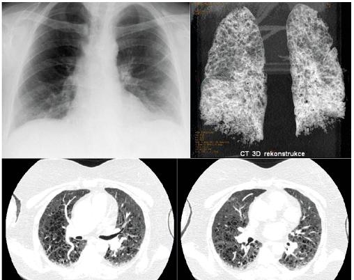 Pacientka s diagnózou LCH stanovenou před 20 lety z infiltrátu vulvy byla přijata pro infekci<br> Na snímku plic není zřetelná patologie. Pro dušnost však provedeno HRCT i s trojrozměrnou rekonstrunkcí. HRCT prokázalo cystické změny plicního parenchymu. Proto máme-li podezření na plicní formu LCH, je nutno provést HRCT zobrazení i při nomálním RTG snímku plic.
