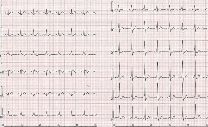Obraz preexcitace u pacienta s WPW syndromem – akcesorní dráha vlevo anterolaterálně.