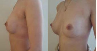 Obr. 5c Tubulární prsa, z profilu – po operaci<br> Obr. 5d Tubulární prsa, z poloprofilu – po operaci