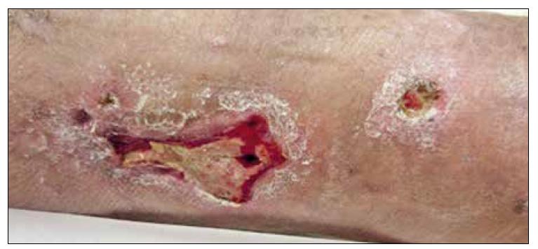 Ulcerace s fibrinovými povlaky na spodině.