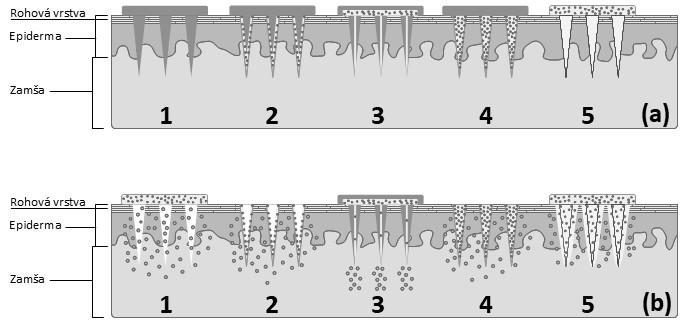 Schematické znázornenie jednotlivých typov zoskupení MI a mechanizmu prieniku liečiva do zamše: aplikácia jednotlivých typov MI (a), permeácia liečiva cez prepichnutú pokožku(b) 1 – pevné MI, 2 – vrstvené MI, 3 – duté MI, 4 – matricová MI, 5 – hydrogélové MI (spracované podľa<sup>41)</sup>)