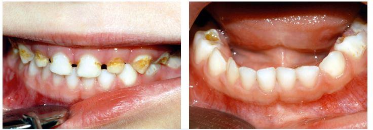 Obr. 2a, b Ilustrativní snímky dítěte s dočasnou denticí postiženou sECC (fotografie z archivu dětského oddělení Stomatologické kliniky FN u sv. Anny, Brno)