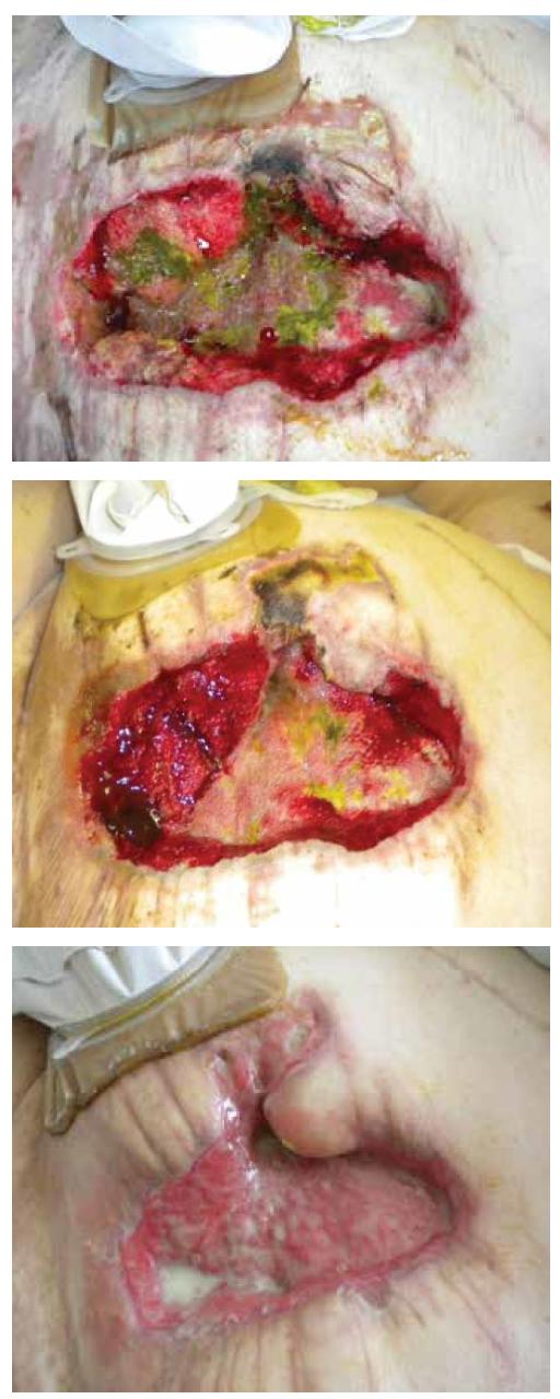 Obr. 4 až 6 Využití u pacienta se znečištěnou dehiscentní laparotomií