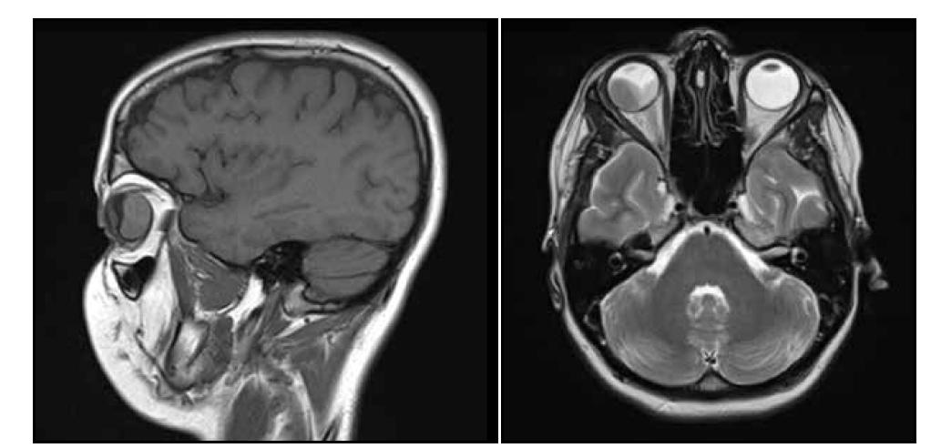Magnetická rezonance hlavy snímek sagitální (A) a transversální (B) – v pravé části pravého bulbu solidní, měkkotkáňová léze čočkovitého tvaru s postkontrastním výrazným sycením, levá a kaudální porce bulbu je vyplněna subretinálním hematomem, bez kalcifikací