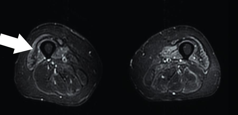 Axiální STIR sekvence – undulating fascia sign u pacienta se sporadickou myozitidou s inkluzními tělísky. Zdroj: Archiv Revmatologického ústavu (ÚVN Střešovice, Discovery 450; 1,5 T)