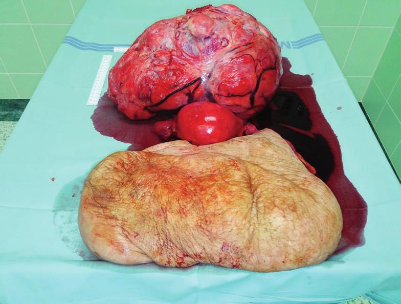 Děloha s objemným tumorem a resekovaný kýlní vak