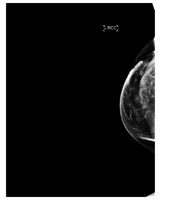 Mamograf, rezistence v jizvě, ložisková léze není jednoznačně patrna.<br> Fig. 7: Mammogram, resistance in the scar, the focal lesion is not clearly identified.