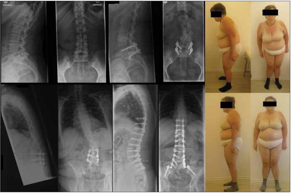 57-ročná pacientka po PLIF L5/S1 pre isthmickú spondylolistézu (na inom pracovisku), v tej dobe iba minimálna skoliotická krivka. Po 10 rokoch bolo pre progredujúcu krivku na tom istom pracovisku realizované predĺženie fi xácie po L3 – bol zvolený neadekvátny rozsah výkonu, v priebehu 2 rokov masívna progresia ťažko dekompenzovanej kyfoskoliózy, bola realizovaná rozsiahla stabilizácia s kompletnou korekciou deformity, subj. výrazné zmiernenie bolestivého syndrómu.<br> Fig. 2. 57-year old female patient after PLIF L5/S1 for isthmic spondylolisthesis (at a diff erent department) at that time with minimal scoliotic curve. After 10 years, for the progression of the curve, extension of fi xation up to L3 was performed at the same department – inadequate extension was chosen, and in 2 years,there was massive progression of severe decompensated kyphoscoliosis. Extensive stabilization with complete correction of the deformity was made, with subjective alleviation of the pain syndrome.