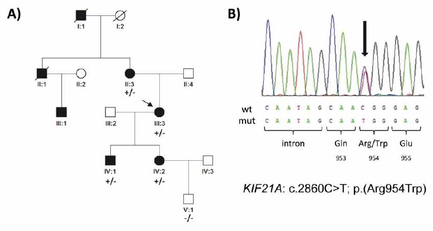 Genetické nálezy v rodině s kongenitální fibrózou zevních okohybných svalů. (A) Rodokmen rodiny a segregace mutace c.2860C>T v heterozygotním stavu. Probandka je označena šipkou. (B) Sekvenční chromatogram detekované mutace (označená šipkou), mutace mění na pozici 954 kodon pro aminokyselinu arginin na tryptofan. Postižené ženy jsou zobrazeny černým kolečkem, muži čtverečkem; +/– označuje jedince pozitivně testovaného na přítomnost mutace c.2860C>T; –/– jedince bez nálezu mutace.<br> Fig. 2. Genetic fi ndings in a family with congenital fibrosis of the extraocular muscles. (A) Pedigree of the family and segregation of the heterozygous mutation c.2860C>T. The proband is indicated by an arrow. (B) Sequence chromatogram; the mutation (arrow) causes an arginine to tryptophan amino acid substitution at codon 954. Aff ected females are represented by black circles and males by black squares; mutation status in tested subjects is shown +/− for those who are heterozygous for the identifi ed mutation and −/− for those who do not carry the pathogenic variant.