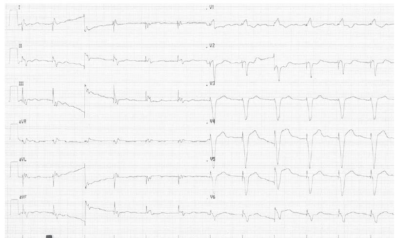 EKG pacienta.