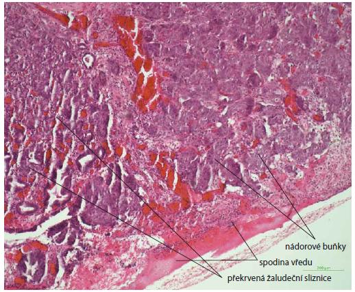 Histologický nález vredu žalúdku s infiltráciou nádorových buniek (metastáza karcinómu prsníka), farbenie hematoxin-eozinom, zväčšenie 10×.<br> Fig. 2. Histological image of stomach ulcer with infiltration of tumour cells (breast carcinoma metastasis), haematoxylin-eosin staining, magnifi cation 10×.