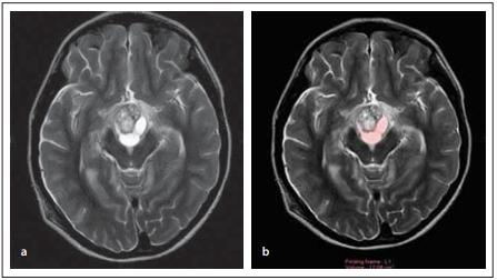 Female patient (12-year-old) – (A) cystic and solid components of the lesion  on axial T2 images; (B) volume measurement of the cystic component of the lesion  on axial T2 images.<br> Obr. 2. Pacientka (12 let) – (a) cystická a solidní komponenta léze na T2 zobrazení  v axiální rovině; (b) měření objemu cystické komponenty léze na T2 zobrazení v axiální  rovině.