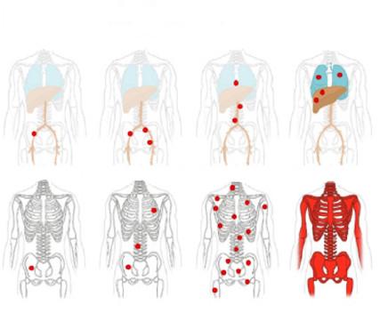 Hodnocení metastáz do lymfatických uzlin a vzdálených metastáz; převzato z (14)<br> Fig. 2. Evaluation of lymph node metastases and distant metastases