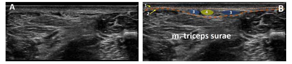 UZ obraz zadní střední části lýtka. A. nativní obraz. B. kolorovaný obraz: 1. povrchní fascie, 2. hluboká fascie, 3. vena saphena parva, 4. nervus suralis