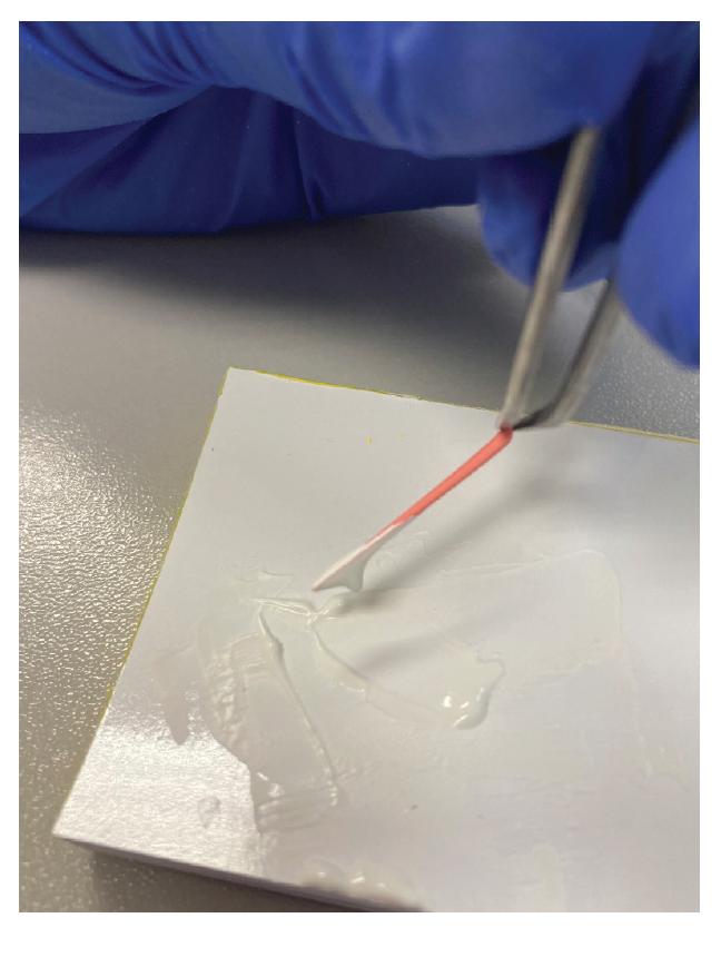 Materiál na gutaperčovém čepu ve větším množství připravený knanášení do kořenového kanálku jako filler <br> Fig. 3 Material on gutta-percha cone, ready for application in large quantities